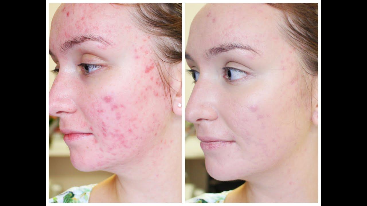 Как вылечить кожу на лице акне