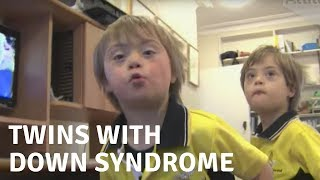 The Whittington Twins with Down Syndrome