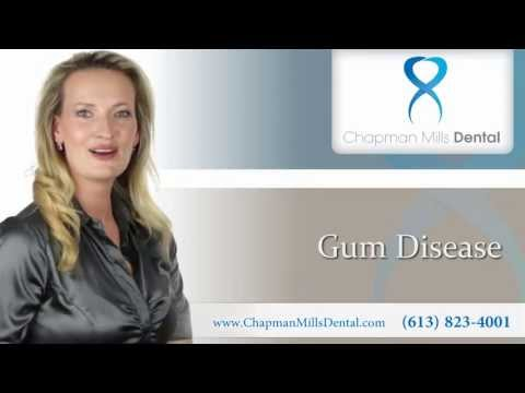 Gum Disease - Periodontal Disease - Ottawa Dental Clinic - Dentist in Ottawa, Ontario