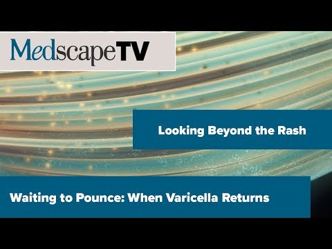 Looking Beyond The Rash | Waiting To Pounce: When Varicella Returns | MedscapeTV