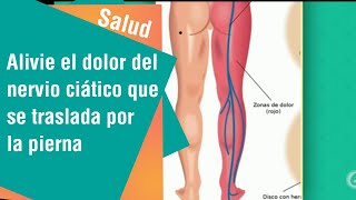 Nervio ciático en hindi del dolor