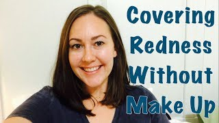 How To Cover/Minimize Redness WITHOUT Makeup *Rosacea & Acne*