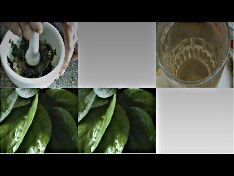 KANKER SERVIKS BISA DISEMBUHKAN DENGAN CRYSTAL X (1) from YouTube · Duration:  2 minutes 14 seconds