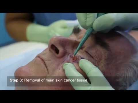 Cancer Face Skin Flap