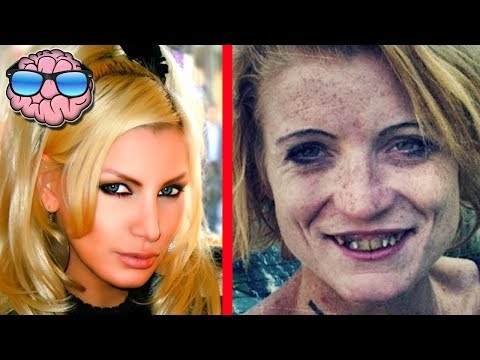 Top 10 Shocking Before And After Drug Use Photos