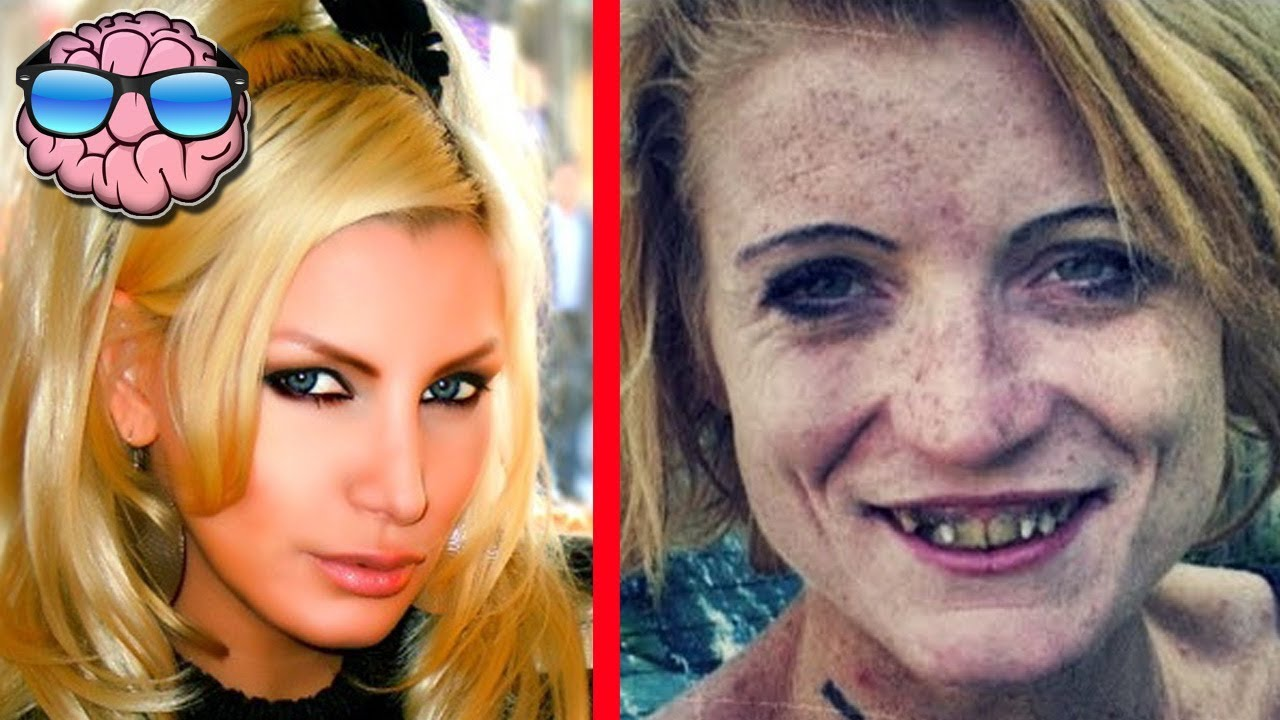 top 10 shocking before and after drug use photos - youtube
