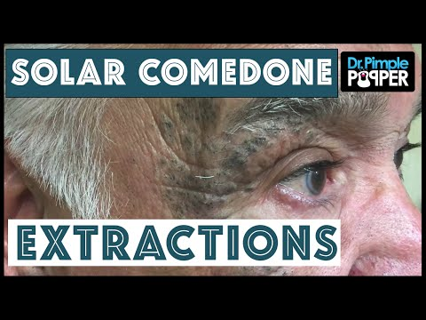 "Extensive Solar Comedone Extractions, Part 1: Nickname ""Masked Man"""
