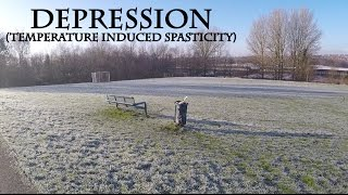 29 Dec 2014 Depression caused by temperature induced spasticity (or summit)