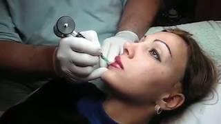 Tatuaj buze pigmentare totala buze Zarescu Dan 0745001236 Arhiva 2004 http://www.machiajtatuaj.ro