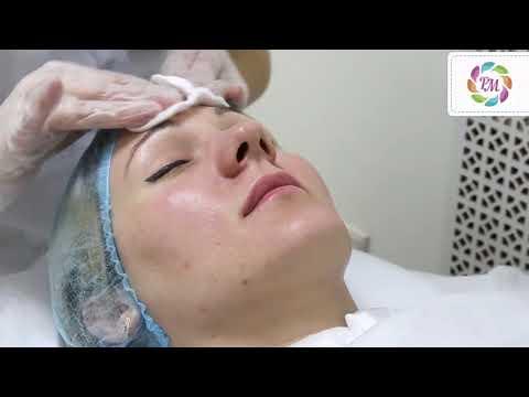 Алмазный пилинг лица   Процедура Роял Медик