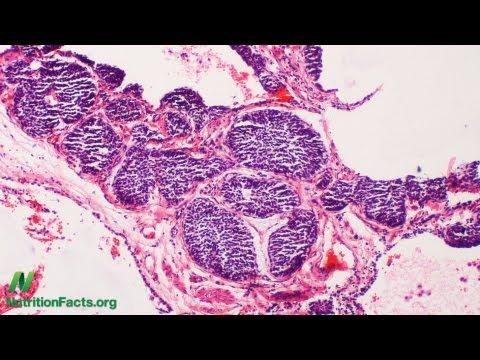 How Tumors Use Meat to Grow: Xeno-Autoantibodies