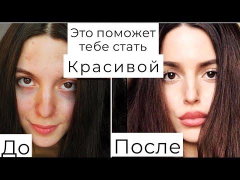КАК СТАТЬ КРАСИВОЙ 🤫ПЛАСТИКА⁉️ Увеличение губ ⁉️Полюбить себя