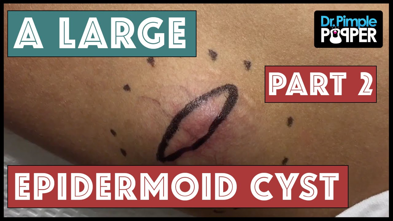 An Extra Elbow, a Floatation Device, or an Epidermoid Cyst? - Part 2 of 2