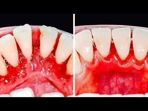 30 MUST-KNOW TEETH HACKS