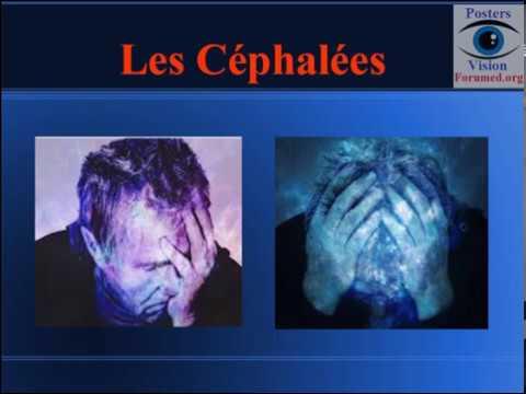 migraine, paupières tombantes ptosis