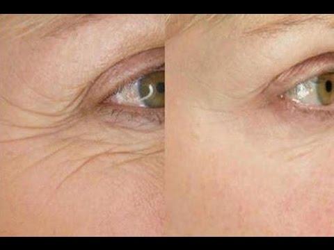 Máscara fácial ANTI-RUGAS- Receita caseira fácil e eficáz!
