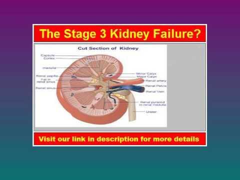 Stage 3 Kidney Failure