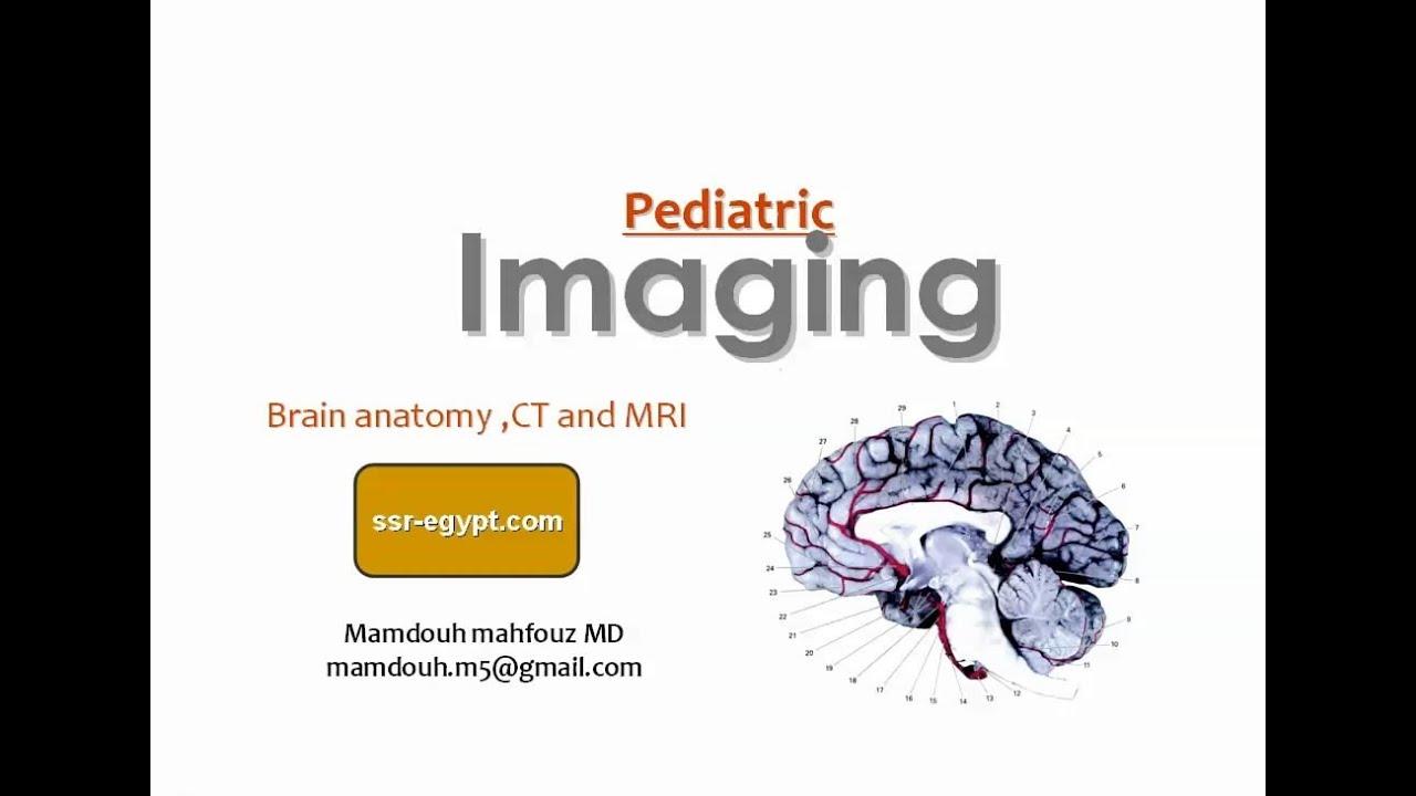 Imaging of Normal brain,pediatric (Sep 2013) - Dr Mamdouh Mahfouz ...