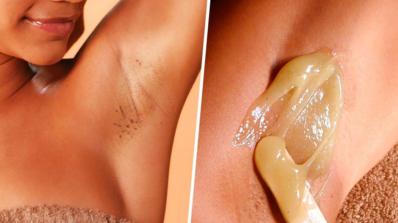 How to Get Rid of Dark Armpits | SATISFYING Ingrown Hair Removal