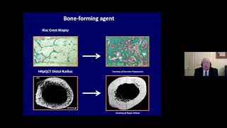 Jean Yves Reginster || New Insights in the Management of Osteoporosis with Bone Forming Agent.....