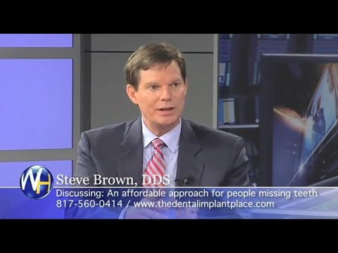Dr. Steve Brown: Advances in Dental Implants Fort Worth, TX