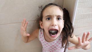 أسنان الطفله جوجو اكلتهم السوسه