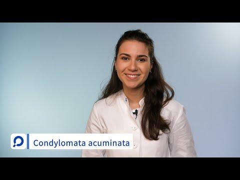 condylomata acuminata behandlung hepatic cancer define