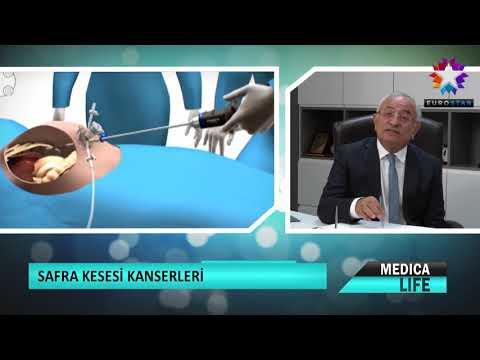 Prof. Dr. Hasan Taşçı - Safra Kesesi - Euro Star - Medica Life