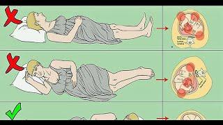 sering ibu hamil mengalami keram perut, apa penyebabnya dan bagaimana cara mengatasinya? simak video.