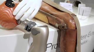 Von der Idee zum Patienten - Beispiel Prothesen