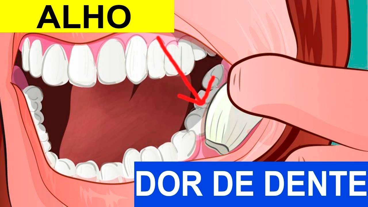 Como O Alho Pode Ajudar A Amenizar A Dor De Dente Youtube