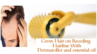 Fight Hair Loss with Dermaroller and Lavender Oil