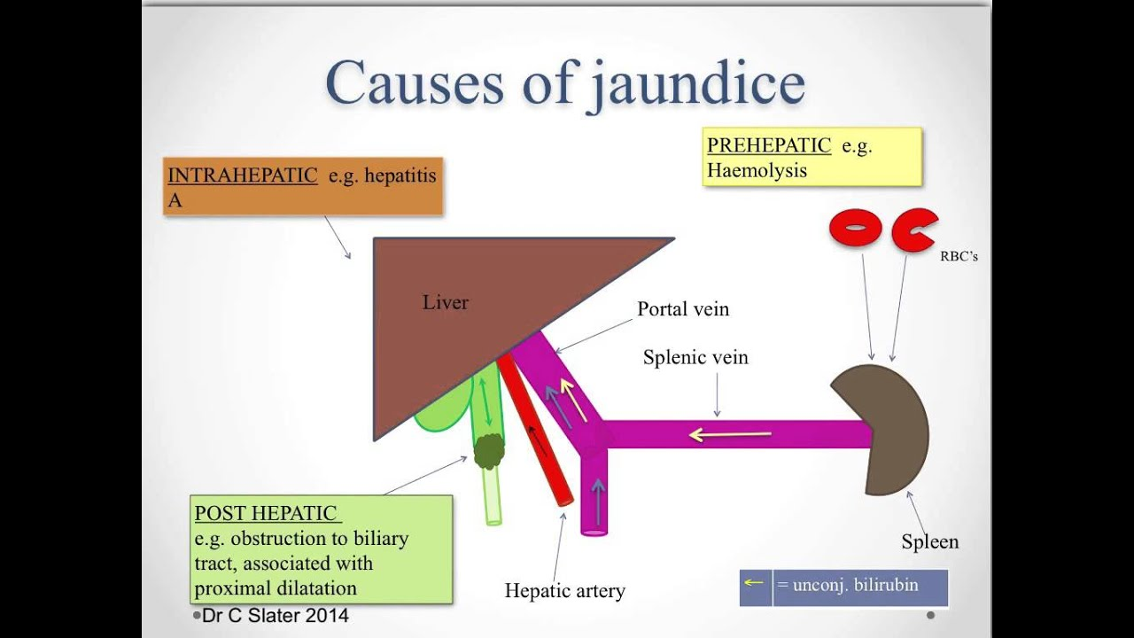 The liver, jaundice and portal hypertension - YouTube