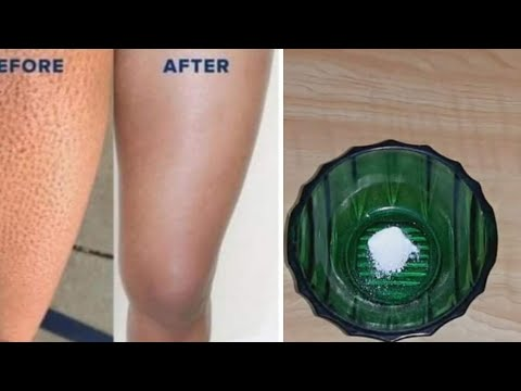 How to get rid of strawberry legs / the best home remediesعلاج جلد الوزة