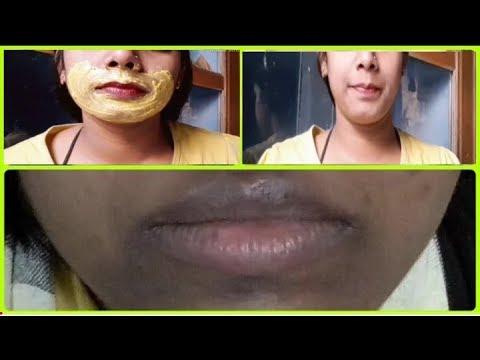 how-to-get-rid-of-dark-black-patches-/-dark-spots-/-hyper-pigmentation-/-around-mouth