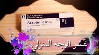 علاج حب الشباب وكريم تبيض الوجه تقشير الوجه في المنزل التقشير القوي Chemical Peel For Acne Youtube