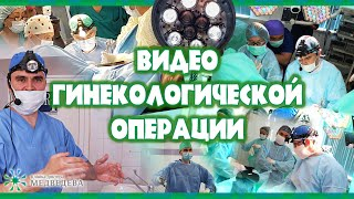 Repeat youtube video Медведев   миомэктомия