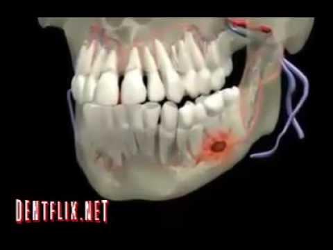 Absceso dental - YouTube