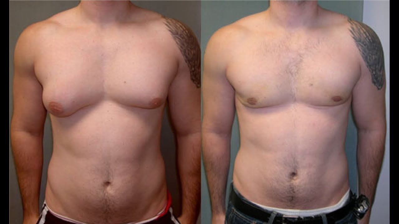 How To Know If You Have Gynecomastia Or Fat - Youtube-2099