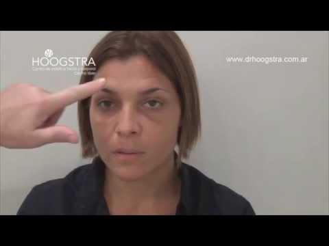 Rejuvenecimiento facial en mujeres jóvenes (14088)