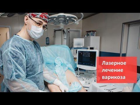 Лазерное лечение варикозного расширения вен в Клинике Доктора Фомина. Метод ЭВЛО/ЭВЛК