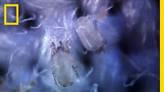 Secret Life of Dust Mites | I Didn