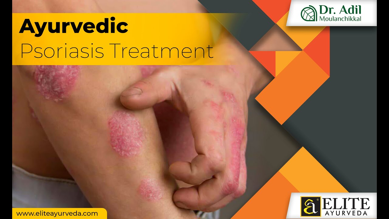 best ayurvedic treatment for psoriasis in bangalore - Welcome - Yasuní Transparente