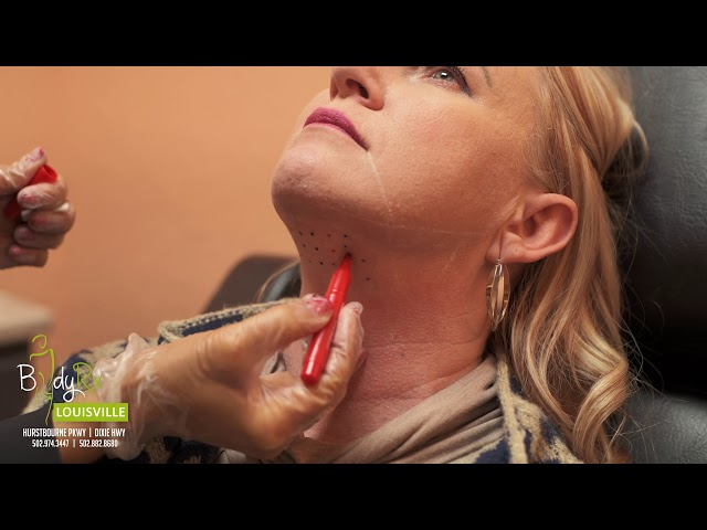 KYBELLA® treatment for double chin | BodyRx Louisville