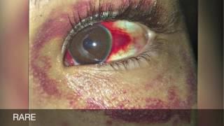 XXXTENTACION - IMALONEIMSORRYCINTHIA (Slowed)