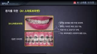치아교정용 투명 브라켓