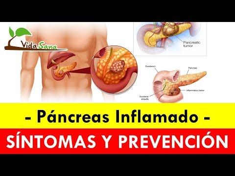 Atencion - Si Sientes Dolor Bajo Las Costillas Podrías Ser Pancreatitis  - Vida Sana