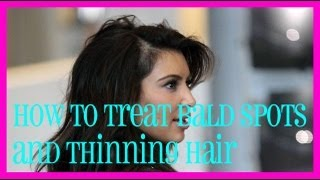 How to Treat Bald Spots and Thinning Hair