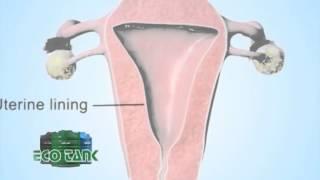 गर्भ निरोधक चक्कीको प्रयोग गर्नुहुन्छ ? सावधान हुनुहोस् || POWER NEWS With Prem Baniya.