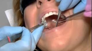 видео замена пломбы